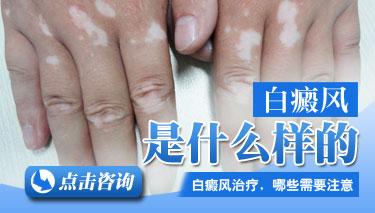 手部白癜风的症状表现是什么
